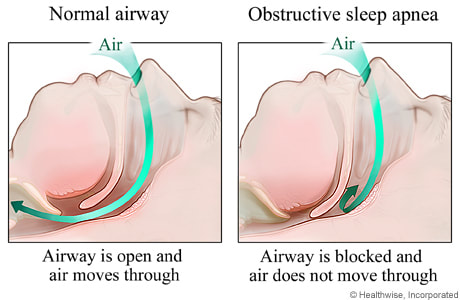 Sleep Apnea dentistry treatment